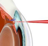 Удаление глаукомы лазером видео