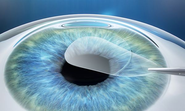 Метод коррекции зрения путём удаления лентикулы через малый разрез (Смайл)