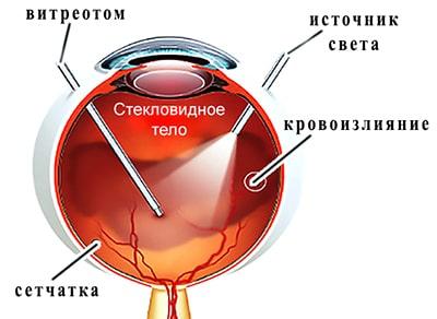 Витрэктомия –это частичноеилиполное удаление стекловидного тела глаза хирургическим путем.
